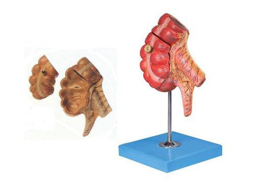 盲肠和阑尾模型