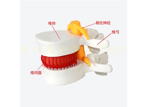 腰椎间盘突出演示模型