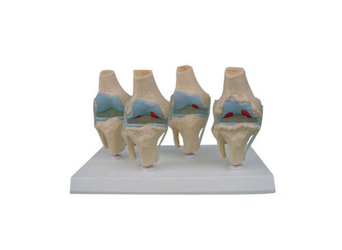 四阶段病变膝关节模型